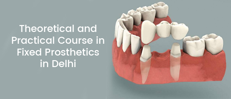 Theoretical and Practical Course in Fixed Prosthetics in Delhi